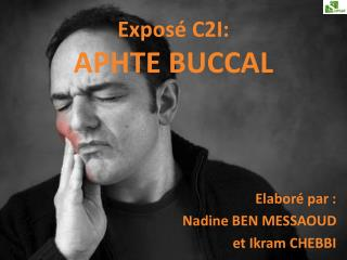 Expos� C2I: APHTE  BUCCAL