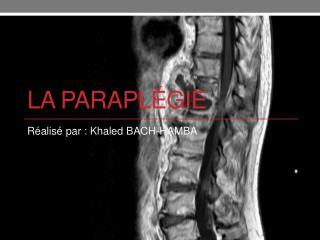 La paraplégie