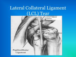Lateral Collateral Ligament (LCL) Tear