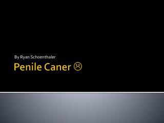 Penile Caner  