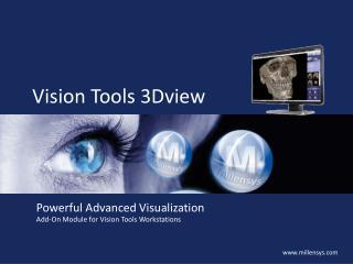 Vision Tools 3Dview