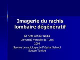 Imagerie du rachis lombaire d g n ratif