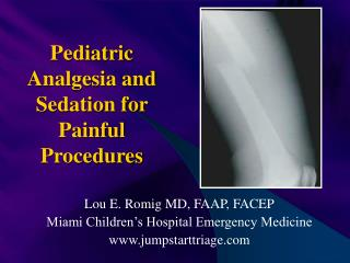 Pediatric Analgesia and Sedation for Painful Procedures