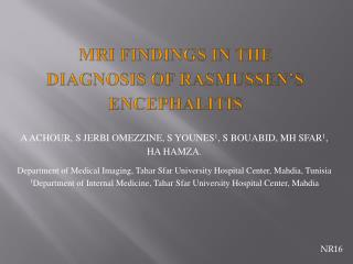 MRI FINDINGS IN THE DIAGNOSIS OF RASMUSSEN'S  ENCEPHALITIS