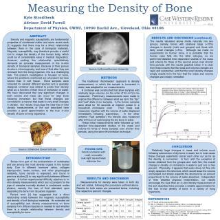 Measuring the Density of Bone
