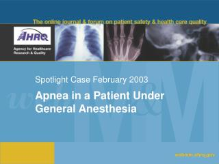 Spotlight Case February 2003
