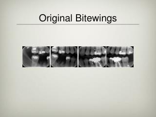 Original Bitewings