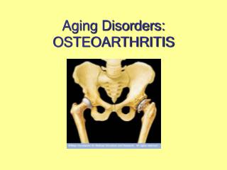 Aging Disorders: OSTEOARTHRITIS
