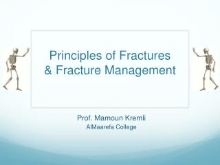 Principles of Fractures & Fracture Management