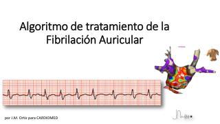 Algoritmo de tratamiento de la Fibrilación Auricular