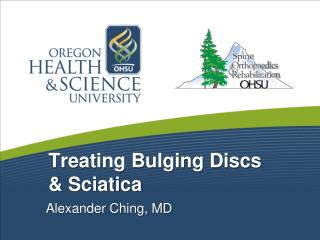 Treating Bulging Discs  Sciatica