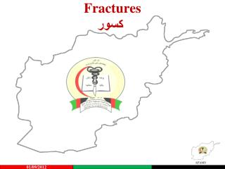 Fractures  کسور