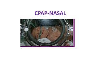 CPAP-NASAL