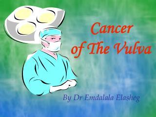 Cancer  of The Vulva