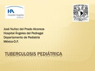 Tuberculosis pediátrica
