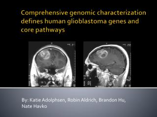 Comprehensive genomic characterization defines human  glioblastoma  genes and core pathways