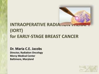 EARLY-STAGE BREAST:  Local Breast Treatment