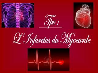 Tpe : L'Infarctus du Myocarde