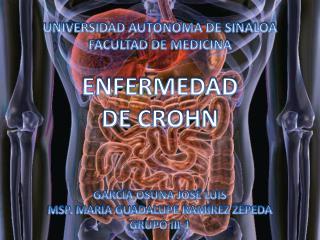 UNIVERSIDAD  AUTÓNOMA  DE SINALOA FACULTAD DE MEDICINA ENFERMEDAD  DE CROHN GARCÍA OSUNA JOSÉ LUIS