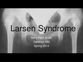 Larsen Syndrome