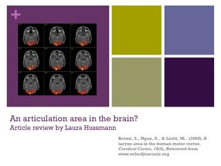 An articulation area in the brain? Article review by Laura Hussmann