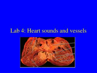 Lab 4: Heart sounds and vessels