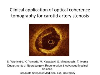 Clinical application of optical coherence tomography for carotid artery  stenosis