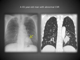 A 65-year-old man with abnormal CXR