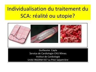 Individualisation du traitement du SCA: réalité ou utopie?