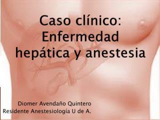 Caso clínico: Enfermedad hepática y anestesia