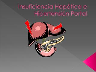 Insuficiencia Hepática e Hipertensión Portal