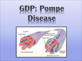 GDP: Pompe Disease