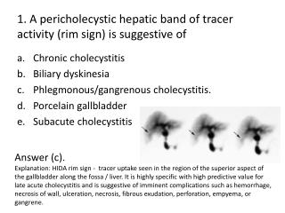 1. A  pericholecystic  hepatic band of tracer activity (rim sign) is suggestive of