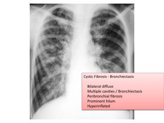 Cystic Fibrosis -  Bronchiectasis     Bilateral diffuse     Multiple cavities /  Bronchiectasis