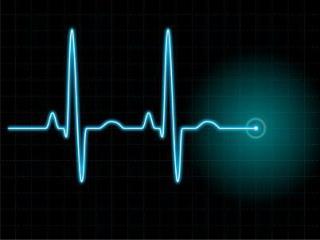 Electrocardiography Dr. Shafali Singh