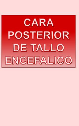 CARA  POSTERIOR DE  TALLO ENCEFALICO