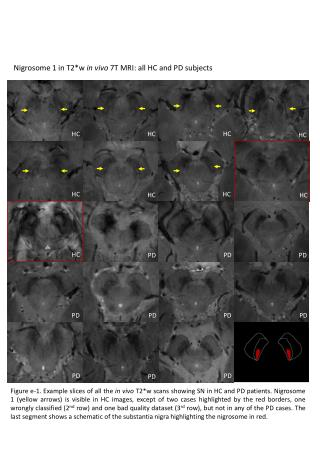 Nigrosome  1 in T2*w  in vivo 7T MRI: all HC and PD subjects