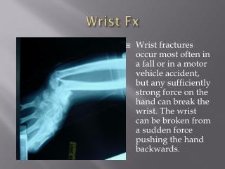Wrist  Fx