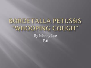 Bordetalla Petussis �Whooping Cough�