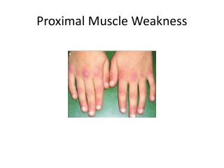 Proximal Muscle Weakness