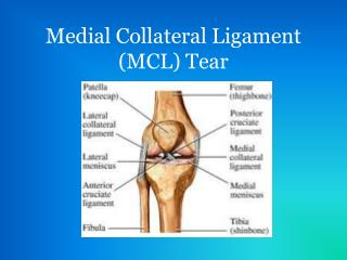 Medial Collateral Ligament (MCL) Tear