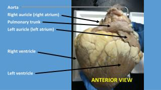 Aorta Right auricle (right atrium) Pulmonary trunk  Left auricle (left atrium) Right ventricle