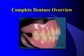 Complete Denture Overview