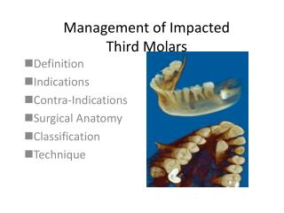 Management of Impacted  Third Molars