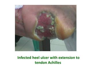 Infected heel ulcer with extension to tendon Achilles