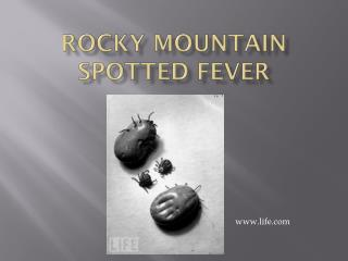 Rocky Mountain Spotted Fever