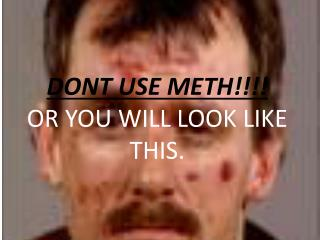 DONT USE METH!!!!  OR YOU WILL LOOK LIKE THIS.
