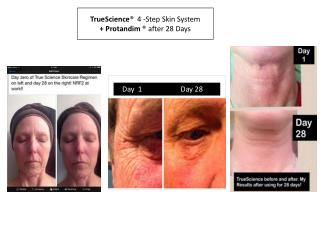 TrueScience ®   4 -Step Skin System + Protandim ®  after 28 Days
