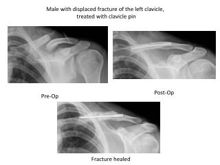Male with displaced fracture of the left clavicle,                       treated with clavicle pin