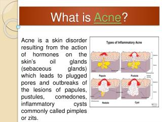 Acne No More Review - Is It Worth Your Time & Money?